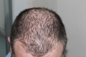 Brennnesselwasser bei Haarausfall